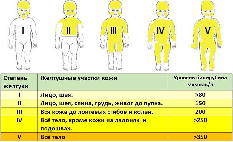 степени желтушки