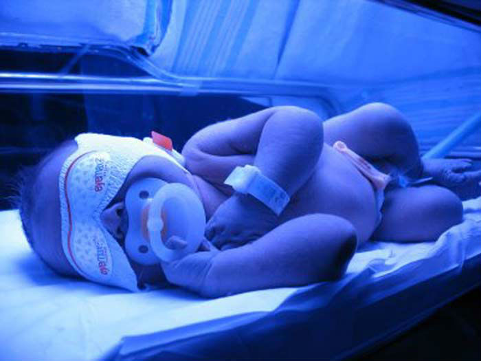 новорожденный под лампой