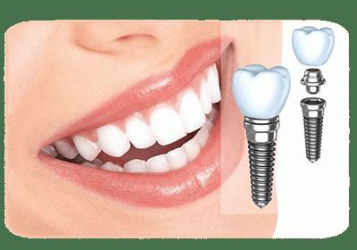 Виды имплантации зубов и их особенности