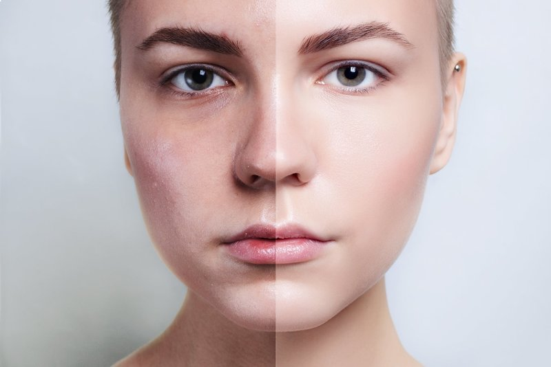 Основные преимущества лазерной шлифовки лица