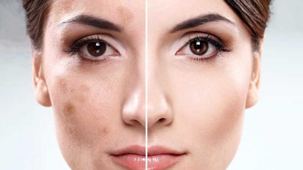 Причины пигментации кожи
